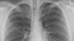 W Polsce zanotowano największą umieralność na raka płuc w Unii Europejskiej